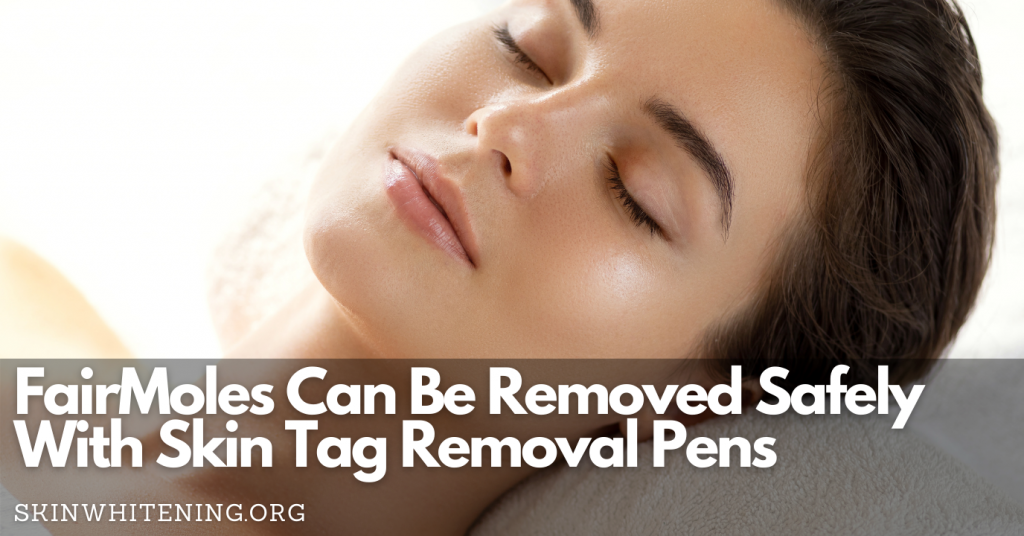 Fairmoles Can Be Removed Safely With Skin Tag Removal Pens